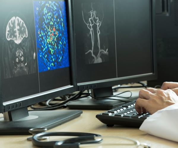 Cos'è la Radiologia Interventistica