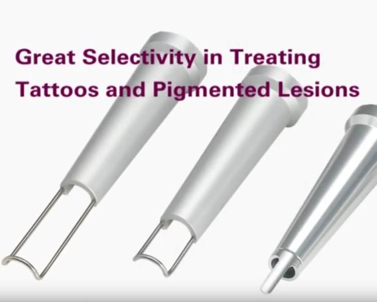 Laser Duolite Q-Switch per rimuovere tatuaggi e macchie della pelle