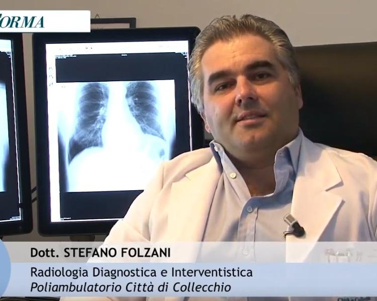 La Prevenzione? Un'arma in più contro il cancro - Dott. Stefano Folzani